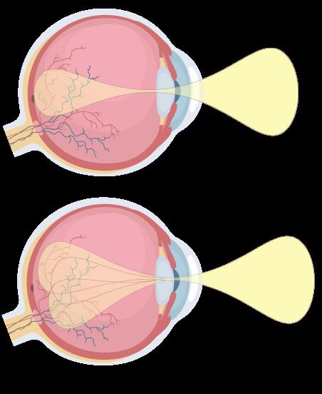 Maladies et troubles oculaires fréquents